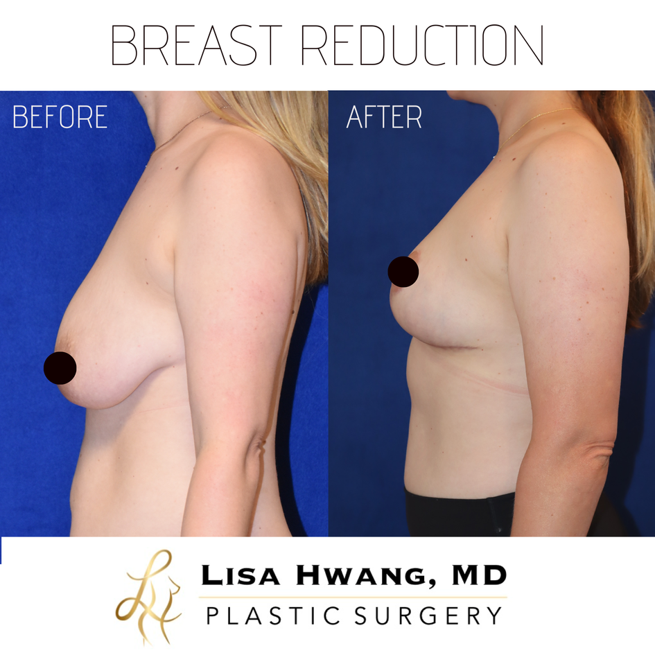 Breast Reduction lateral