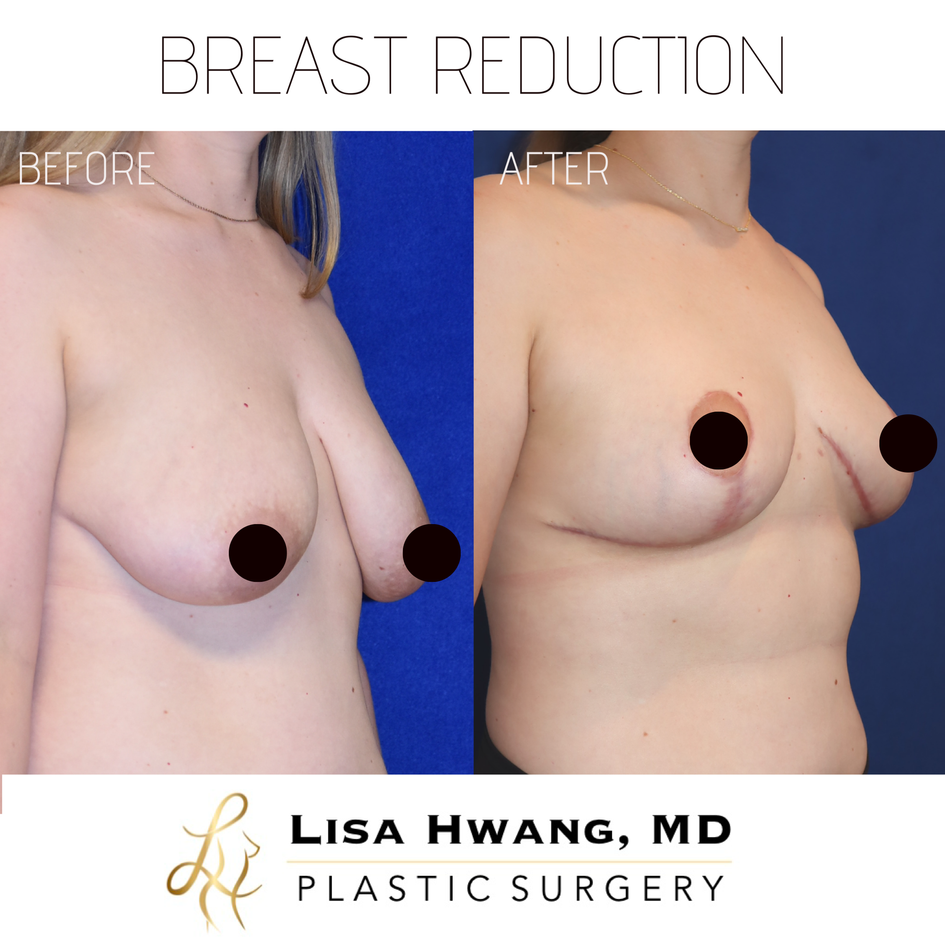Breast Reduction oblique.PNG