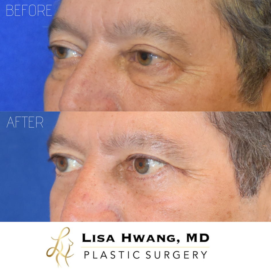UPPER AND LOWER EYELID LIFT.PNG