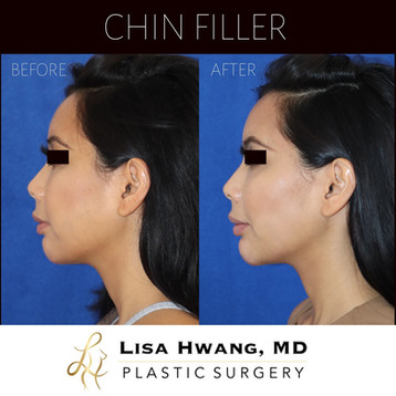 Buccal fat removal and chin filler