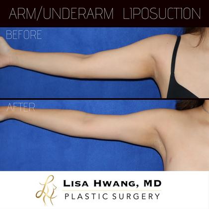 Arm/Underarm(Armpit) Liposuction
