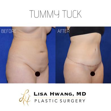 Tummy Tuck & Liposuction.PNG