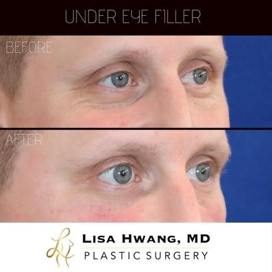 Under Eye Filler