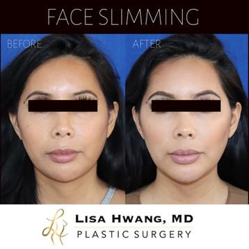 Facial Slimming