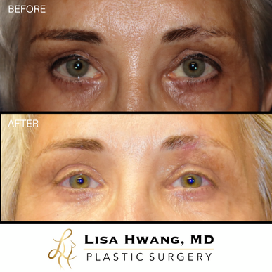 Eyebrow Scar Revision