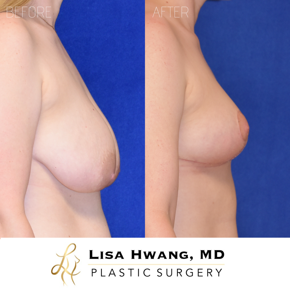 Breast Lift with small Reduction