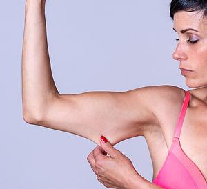 upper arm lift weight loss extra skin brachiaplasty fitness transformation
