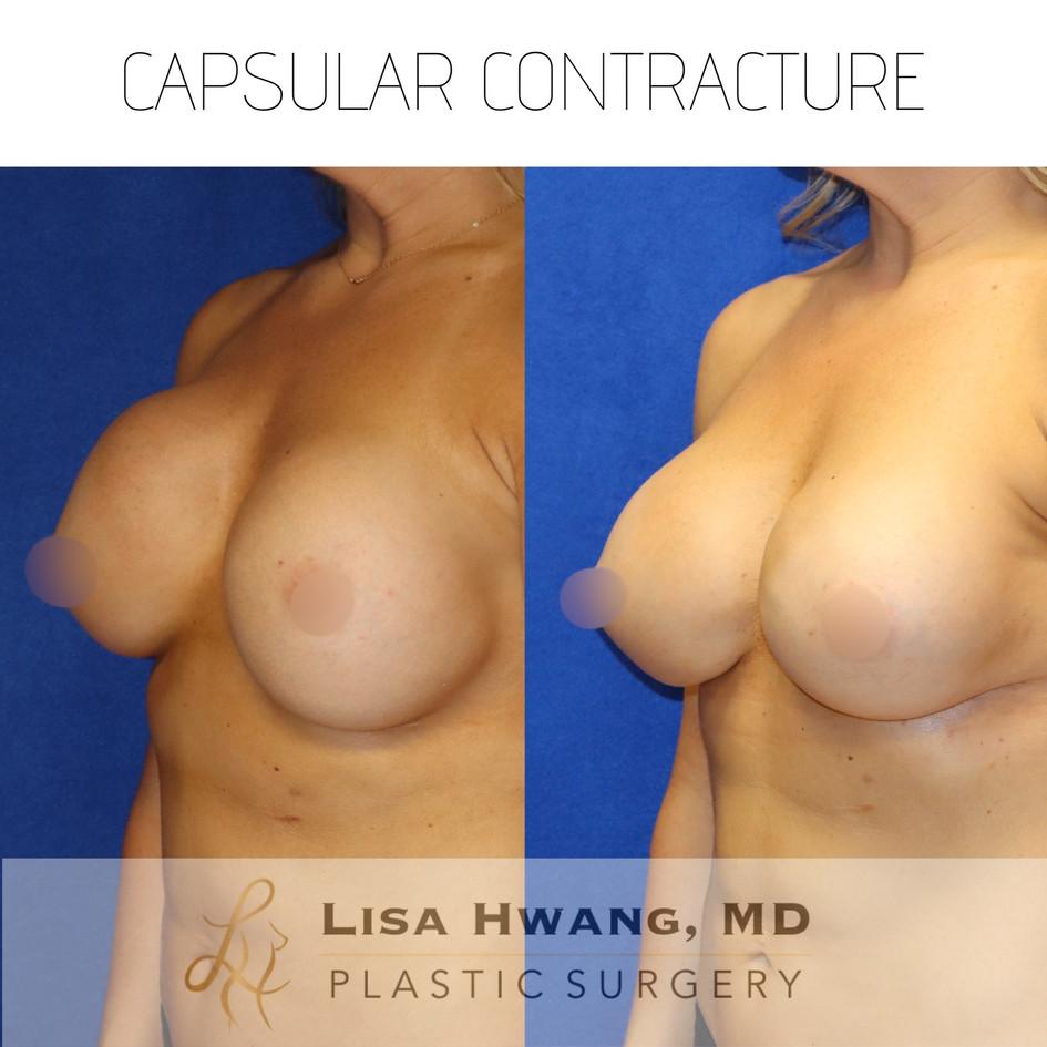Capsular Contracture - Breast Augmentation Revision