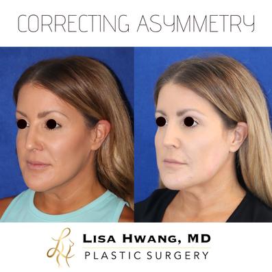 Correcting Facial Asymmetry with Dermal Filler oblique