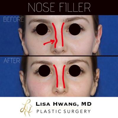 Nose Filler.jpg