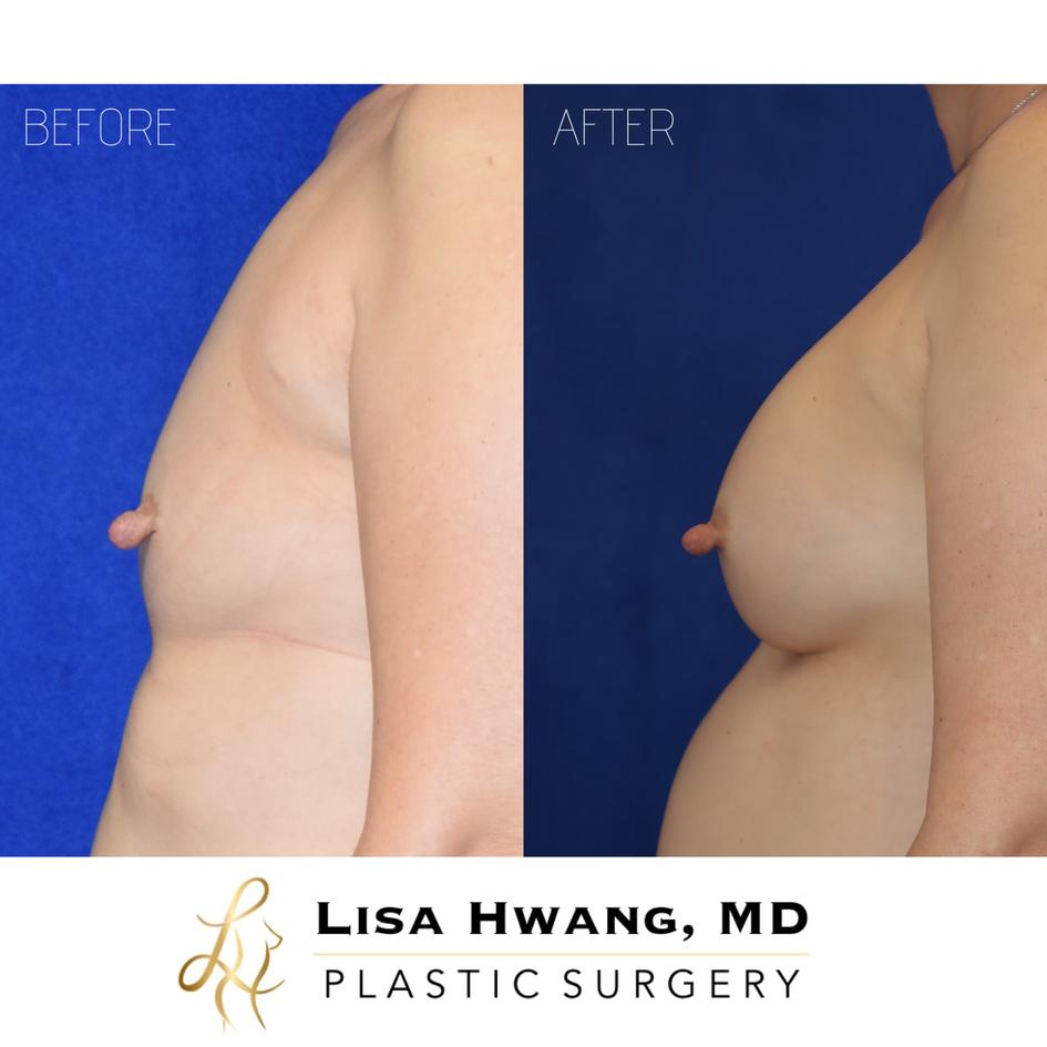 Breast Augmentation - 365 cc Silicone Im