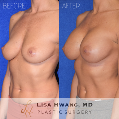 Breast Augmentation 240 cc Silicone Implants