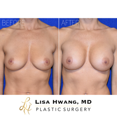 Breast Augmentation - 240 cc Silicone Implants