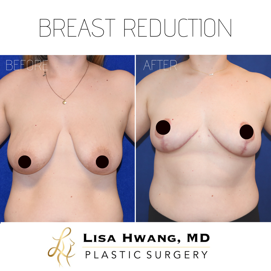Breast reduction front.PNG