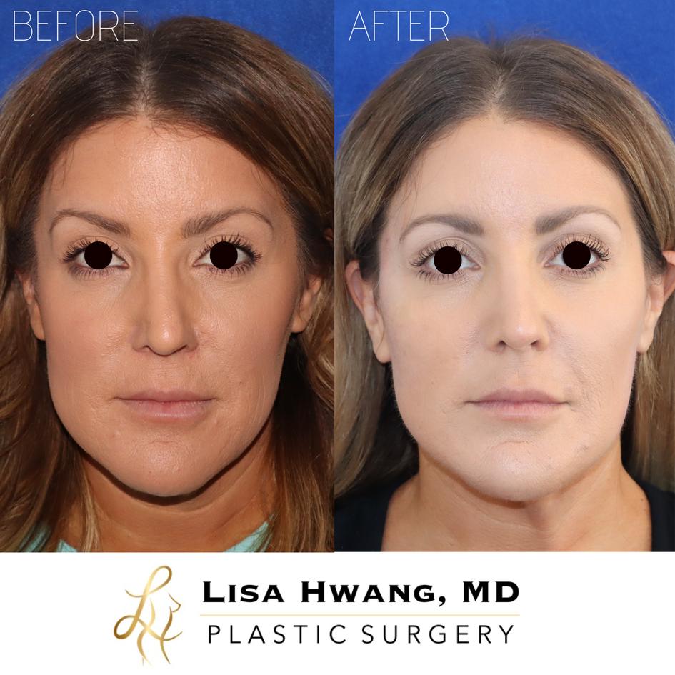 Correcting Facial Asymmetry with Dermal