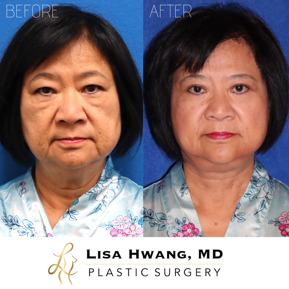 Facelift, Neck Lift, Upper and Lower Eyelid Lift, Fat Grafting