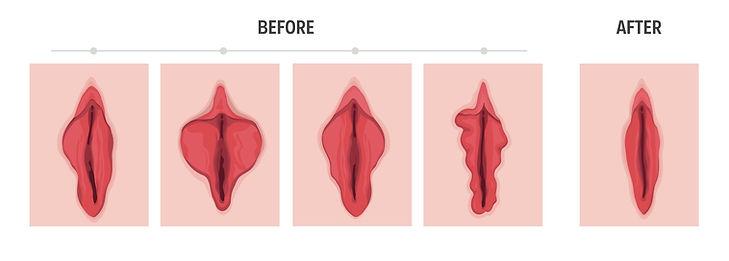 labiaplasty.jpg