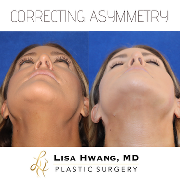 Correcting nasal and chin asymmetry with
