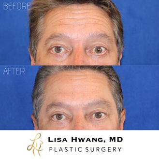 Botox Neuromodulator Treatment of Forehe