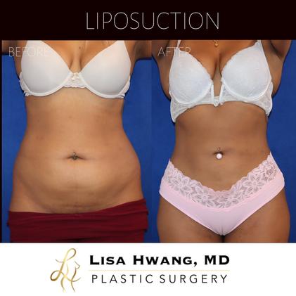 360 Liposuction - Abdomen, flanks, lower back