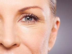 eyebag%20female_edited.jpg