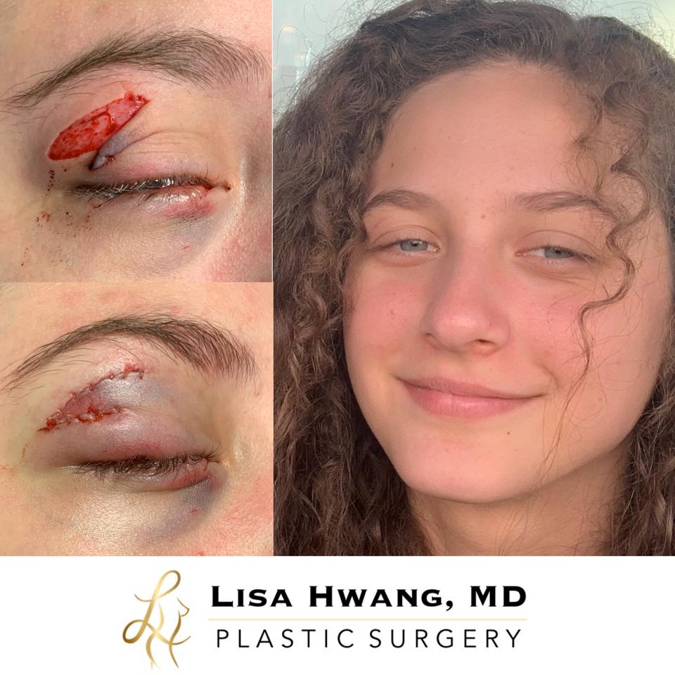 Dog Bite - Eyelid Repair