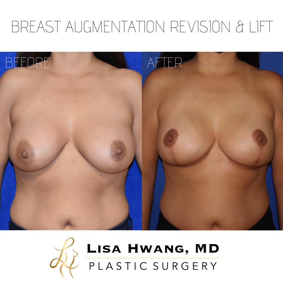 Breast Augmentation & Breast Lift