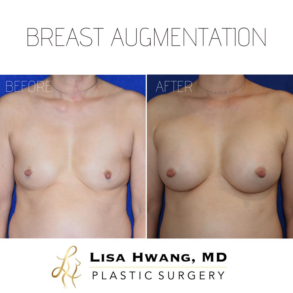 Breast Augmentation - 365 cc Silicone Implants