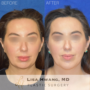 Chin Augmentation with Implant