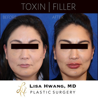 Toxin and Filler