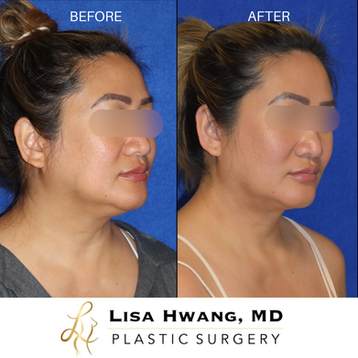 buccal fat removal, neck liposuction