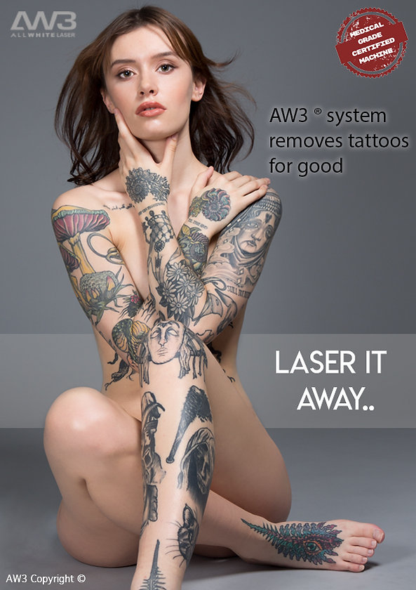 AW3 tattoo removal laser tattoo removal