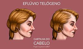 Eflúvio telógeno ou queda de cabelo (pós parto, dengue)