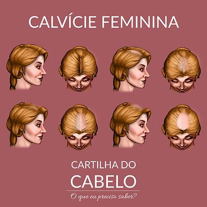 Alopecia androgenética feminina ou calvície feminina - tricologista em brasilia