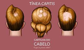 Tínea capitis ou Alopecia por fungos