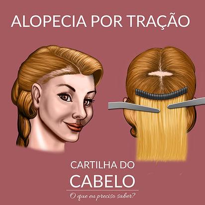 Alopecia por tração - Mega Hair e extensão de cabelo - Tricologista Brasilia DF