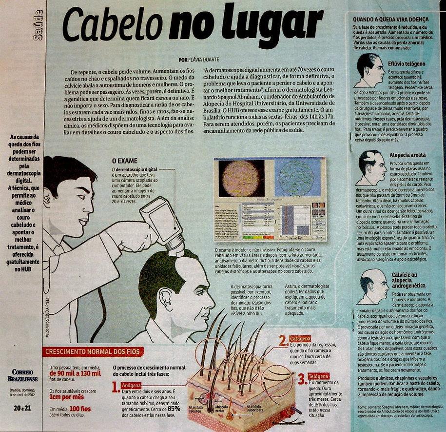 Tricoscopia exame para queda de cabelo (alopecia - calvície)