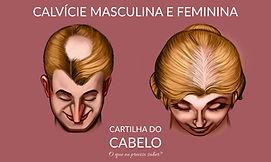 Alopecia androgenética ou Calvície masculina feminina