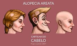 Alopecia Areata, Alopecia total ou Universal