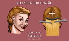 Alopecia por tração (Mega Hair)