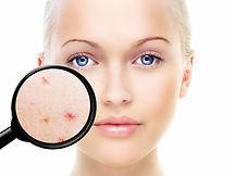 Acne, pele, dermatologia