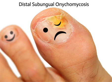 3 Things You Didn't Know About Toenail Fungal Infections