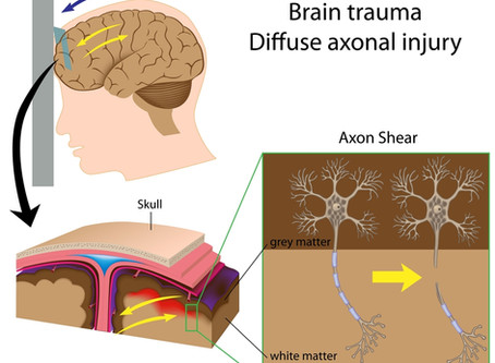 Traumatic Head Injury: 5 things you need to know to save lives