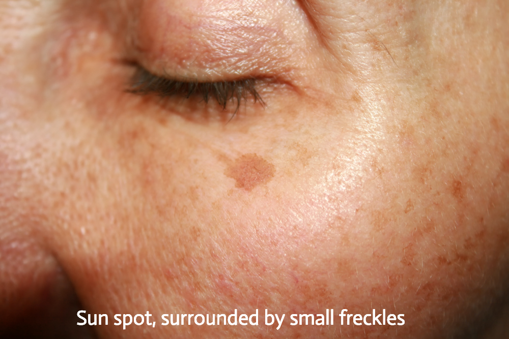 Sun spot, surrounded by small freckles