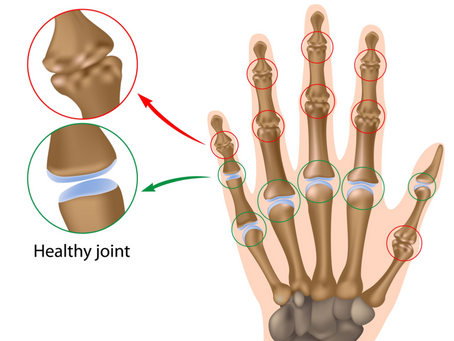 Five Common Causes of Wrist Pain and Hand Pain