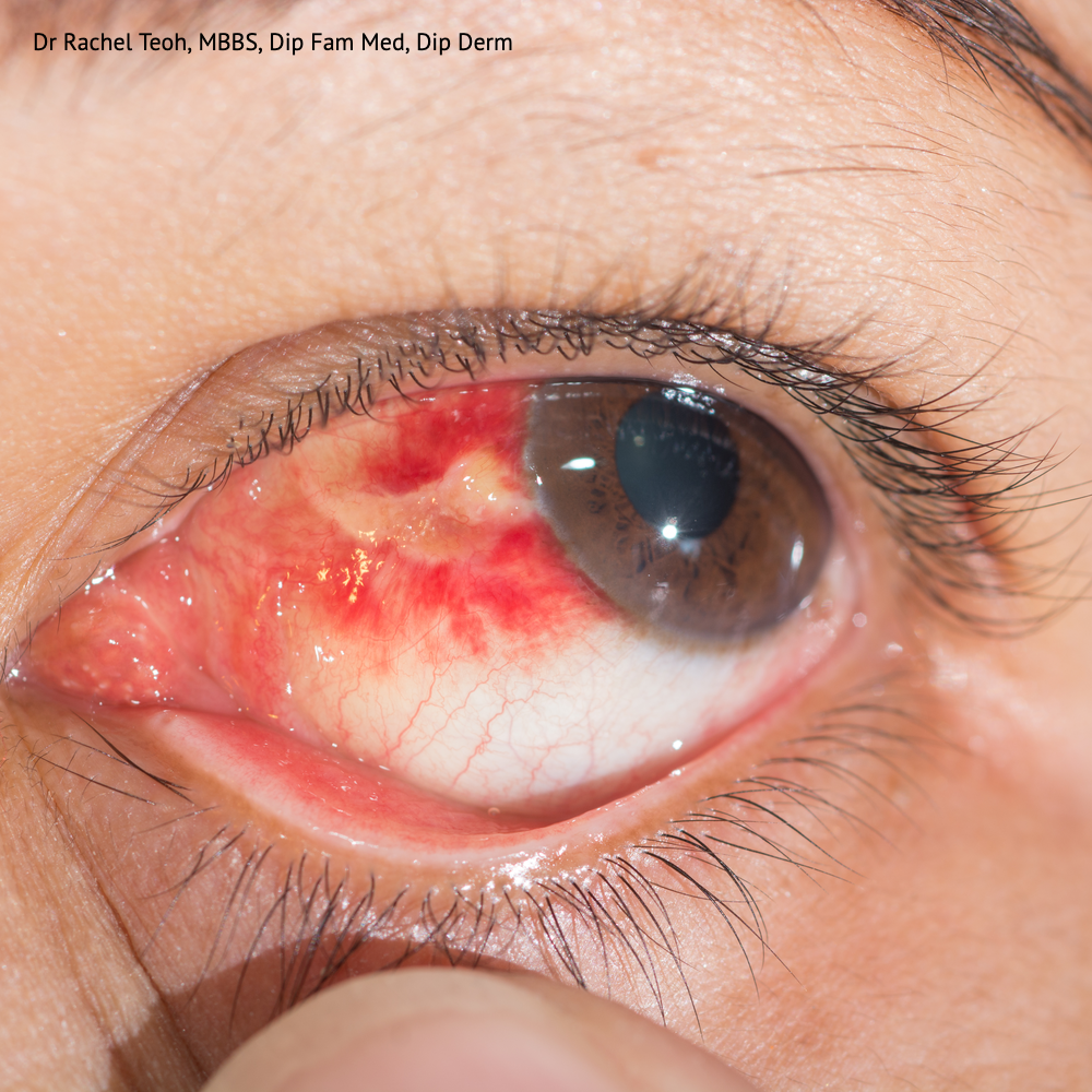 Conjunctival suffusion with subconjunctival hemorrhage