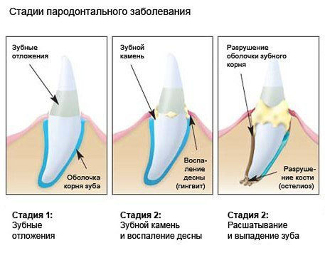 зубы налет.jpg