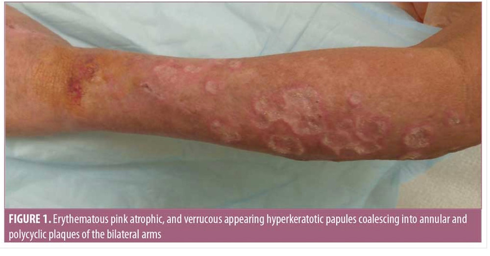 Make sure you REALLY have skin cancer