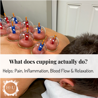 What does cupping actually do?