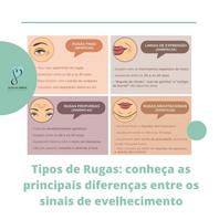 Tipos de Rugas: conheça as principais diferenças entre os sinais de envelhecimento